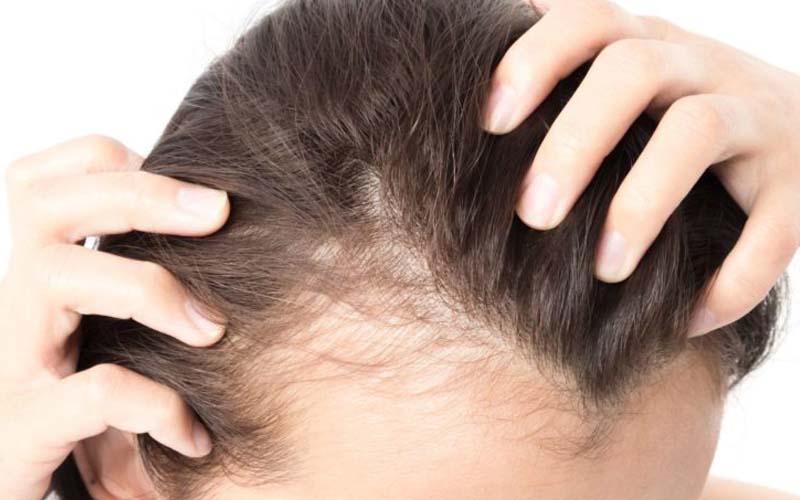 استفاده از تونیک ضدریزش مو
