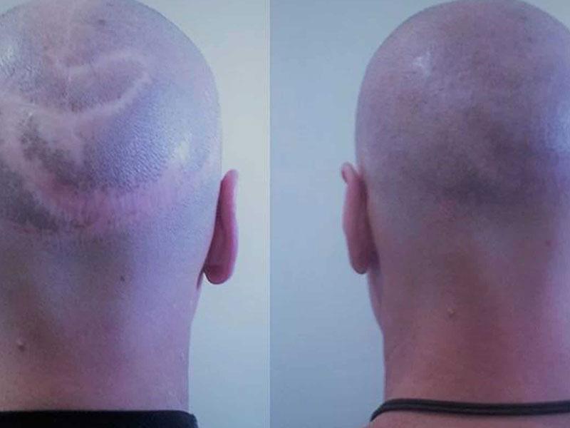 جراحی کاهش پوست سر برای درمان ریزش مو